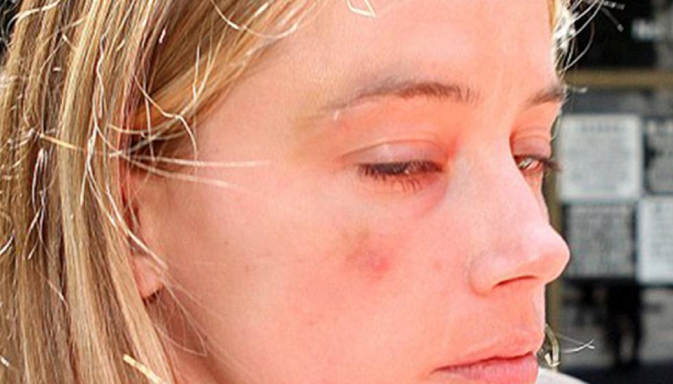 امبر هيرد: جوني ديب مارس العنف المنزلي ضدي
