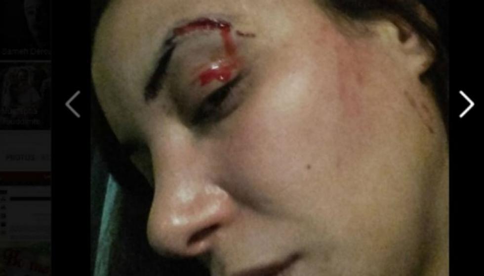 الإعتداء على ممثلة مغربية لعبت دور عاهرة في فيلم