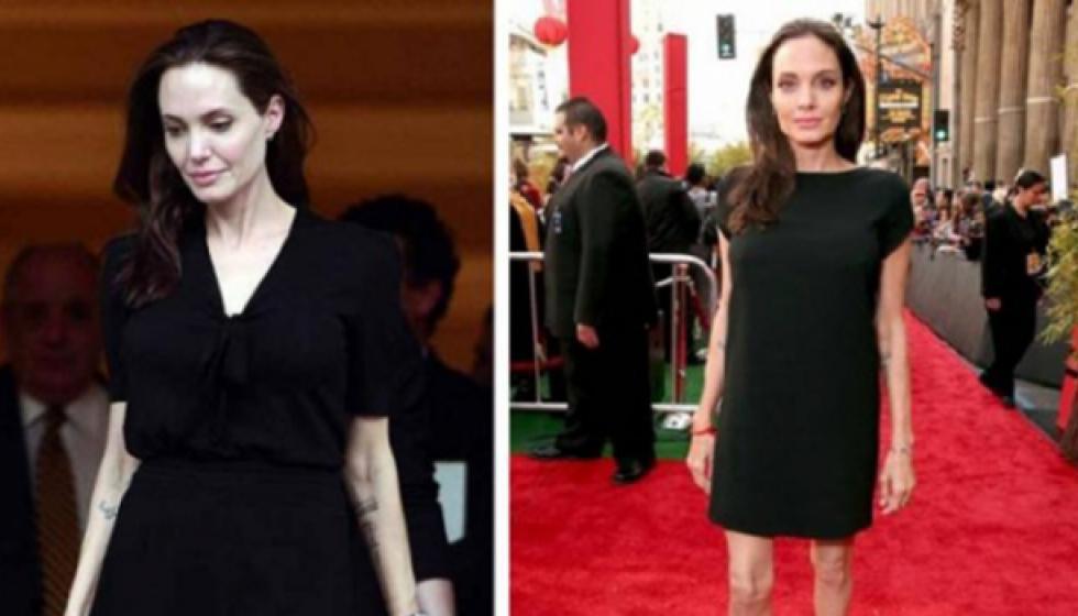 هل هاجس السرطان يلاحق أنجلينا جولي؟