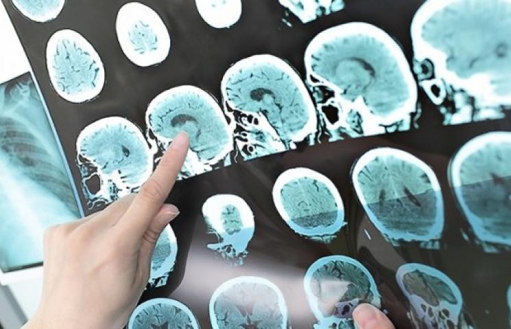 رذاذ مضيء لإستئصال أورام الدماغ